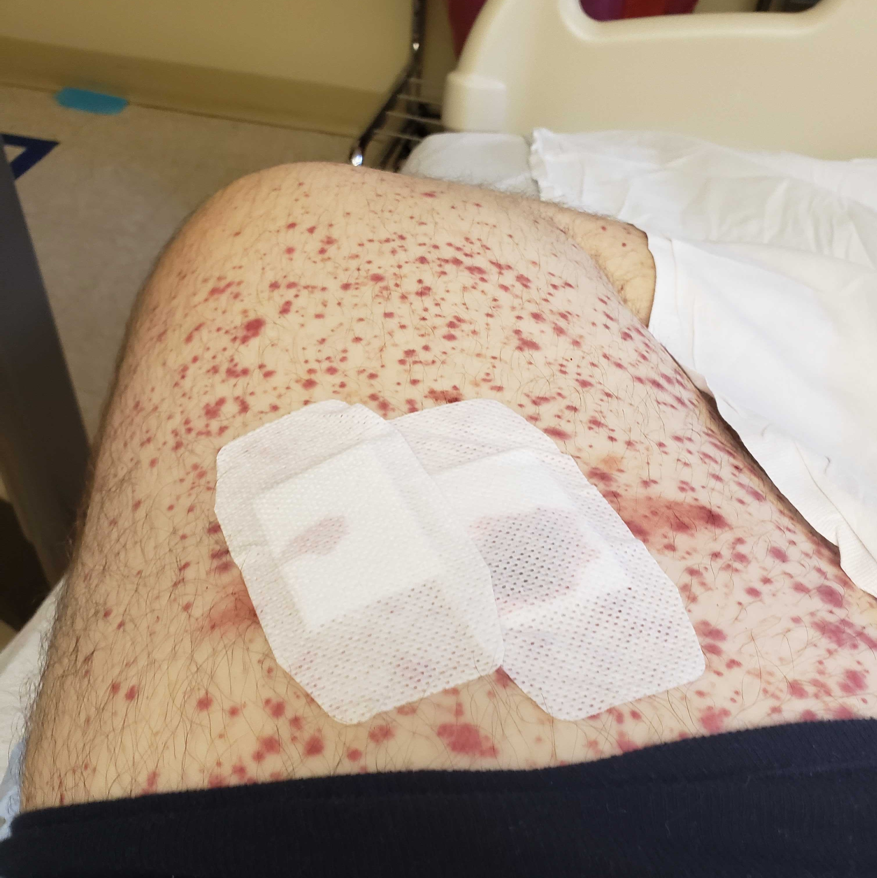 My thigh post-biopsy