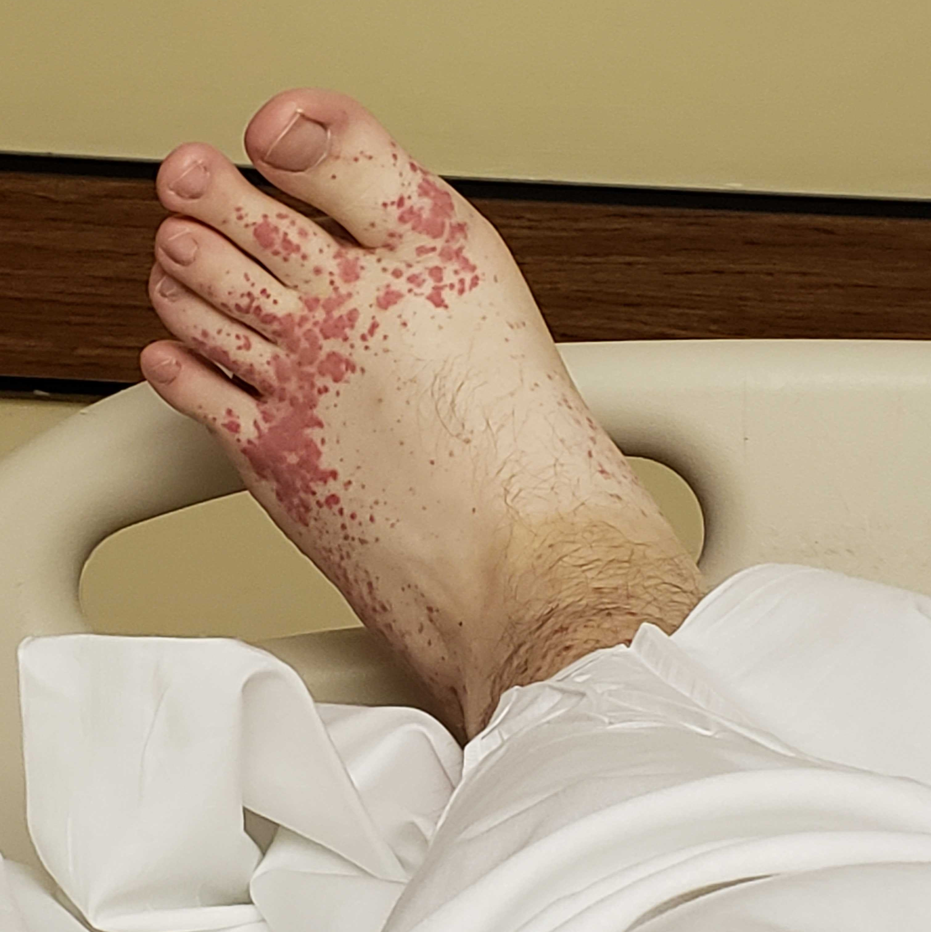My foot while laying in my hospital bed
